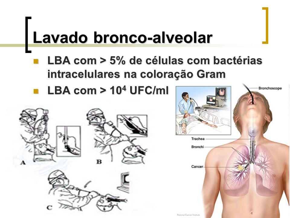 Lavado bronco-alveolar LBA com > 5% de células com bactérias intracelulares na coloração Gram LBA com > 5% de células com bactérias intracelulares na