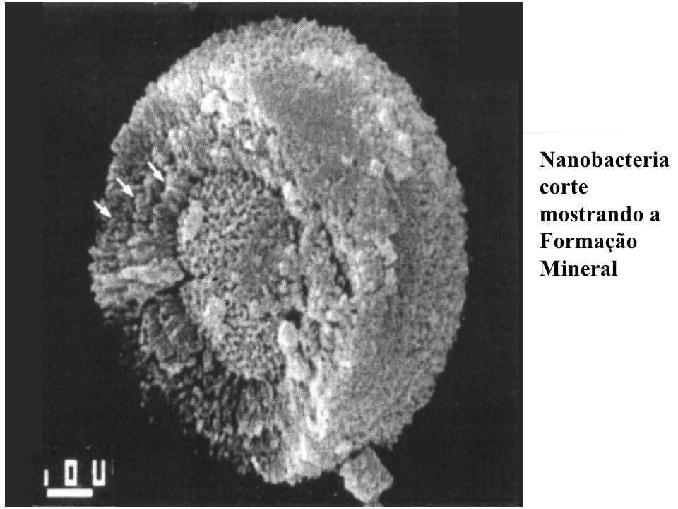 Dra Nadja Ferreira Infecções e Litiase Renal por Nanobacterias urinarias Ciftcioglu N(1999) Sidhu H (1999) Yoshida O (1999) Kidney Int 56 (1999): Finland