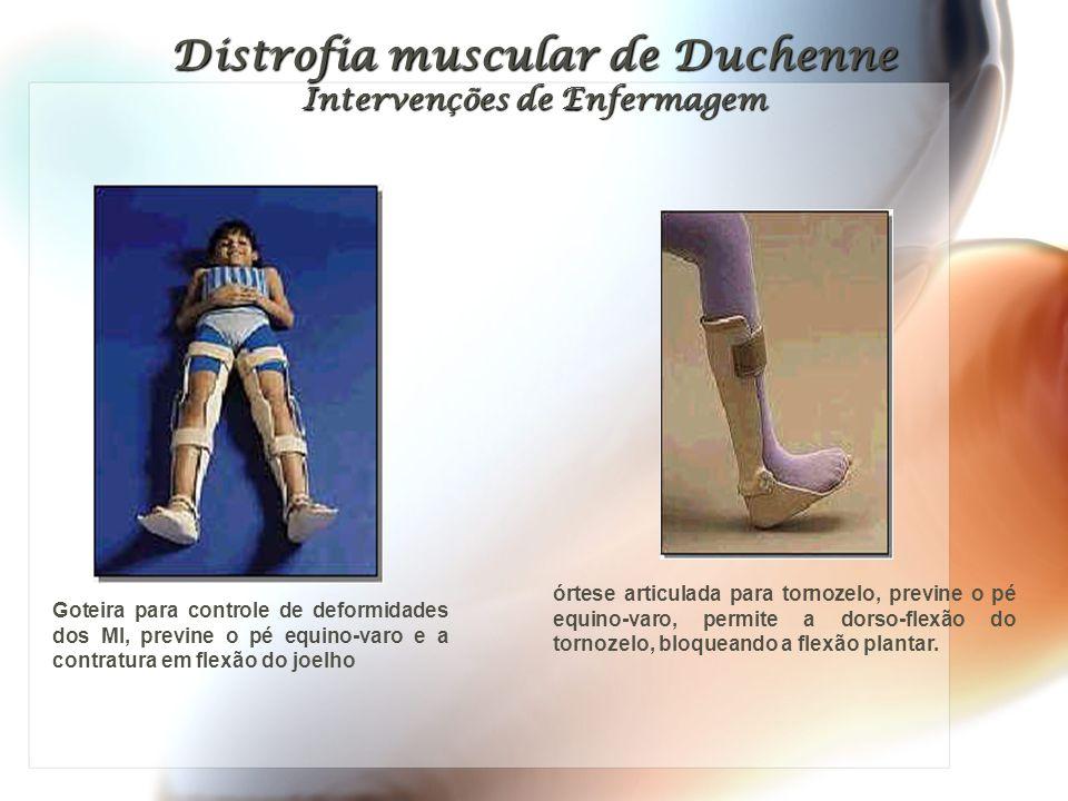 Distrofia muscular de Duchenne Intervenções de Enfermagem órtese articulada para tornozelo, previne o pé equino-varo, permite a dorso-flexão do tornozelo, bloqueando a flexão plantar.