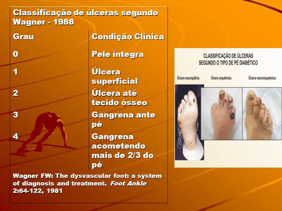 Tabela – Sistema de classificação de risco Consenso Internacional sobre Pé Diabético, 2001 Risco Categoria Categoria 0 Neuropatia ausente Neuropatia a