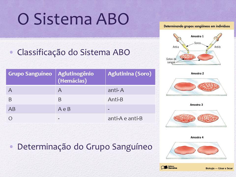 O Sistema ABO Classificação do Sistema ABO Determinação do Grupo Sanguíneo Grupo SanguíneoAglutinogênio (Hemácias) Aglutinina (Soro) AAanti- A BBAnti-