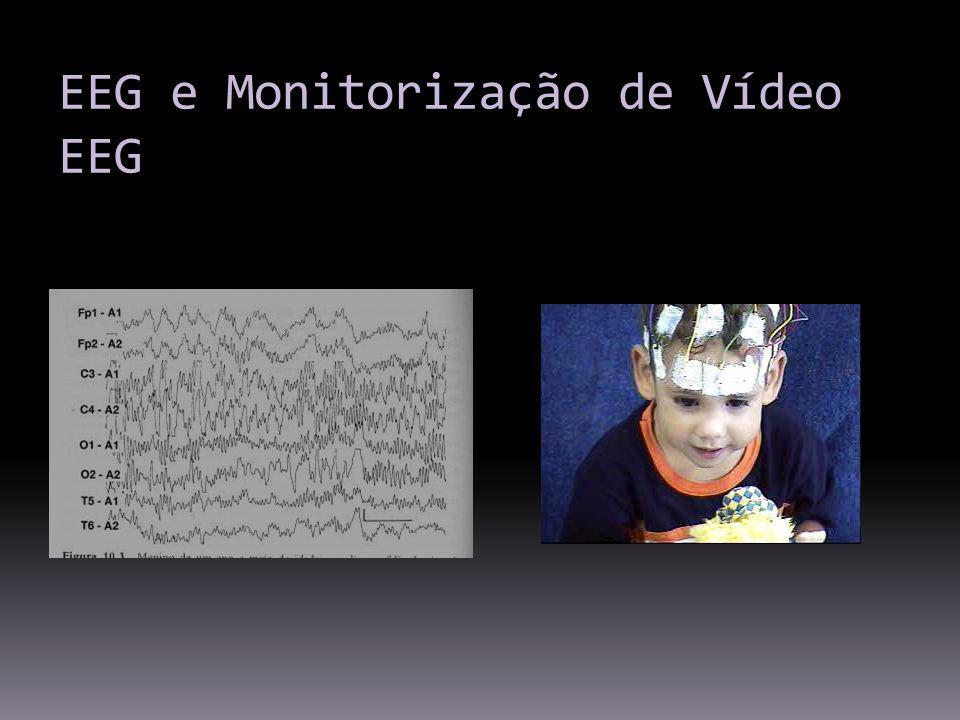 EEG e Monitorização de Vídeo EEG