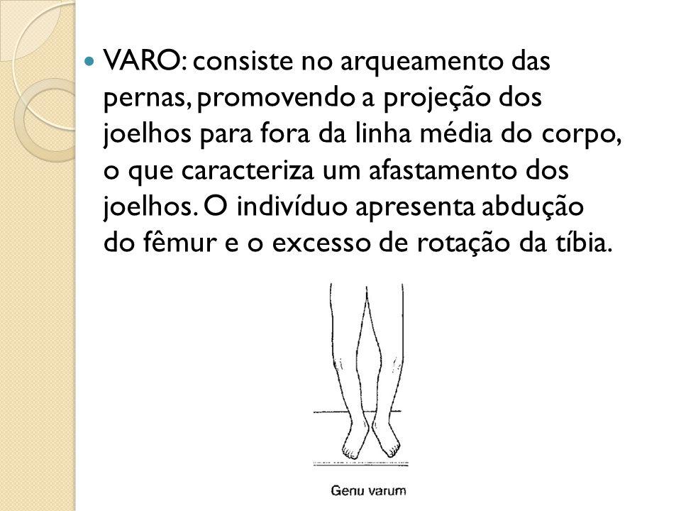 VARO: consiste no arqueamento das pernas, promovendo a projeção dos joelhos para fora da linha média do corpo, o que caracteriza um afastamento dos jo