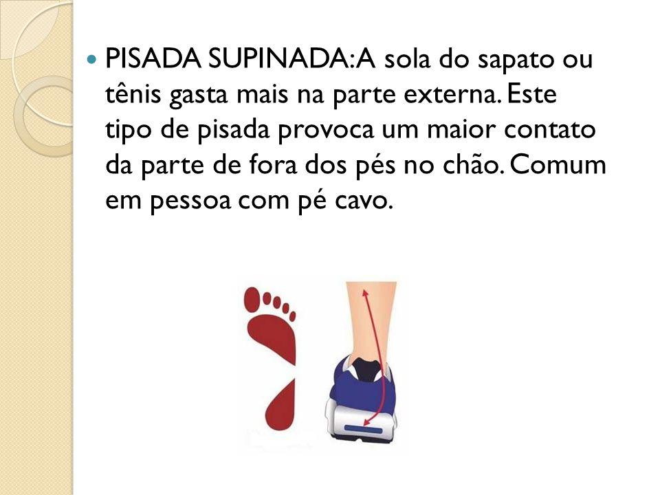 PISADA SUPINADA: A sola do sapato ou tênis gasta mais na parte externa. Este tipo de pisada provoca um maior contato da parte de fora dos pés no chão.