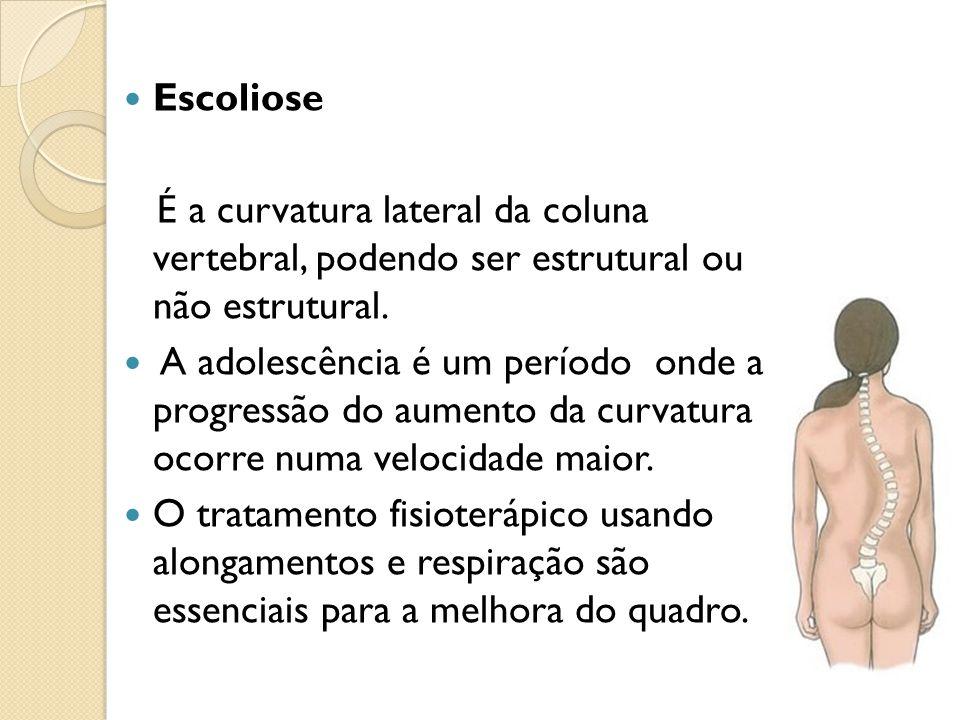 Escoliose É a curvatura lateral da coluna vertebral, podendo ser estrutural ou não estrutural.