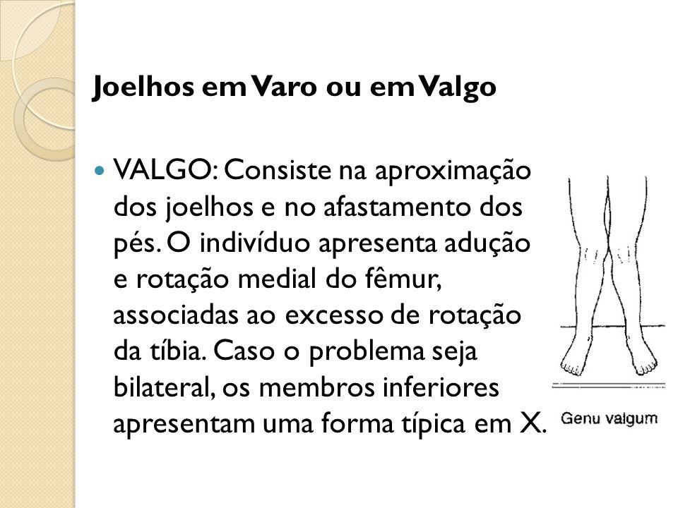 Joelhos em Varo ou em Valgo VALGO: Consiste na aproximação dos joelhos e no afastamento dos pés. O indivíduo apresenta adução e rotação medial do fêmu