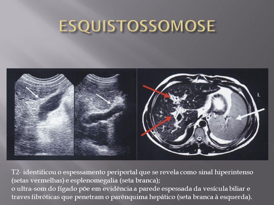 T2- identificou o espessamento periportal que se revela como sinal hiperintenso (setas vermelhas) e esplenomegalia (seta branca); o ultra-som do fígad