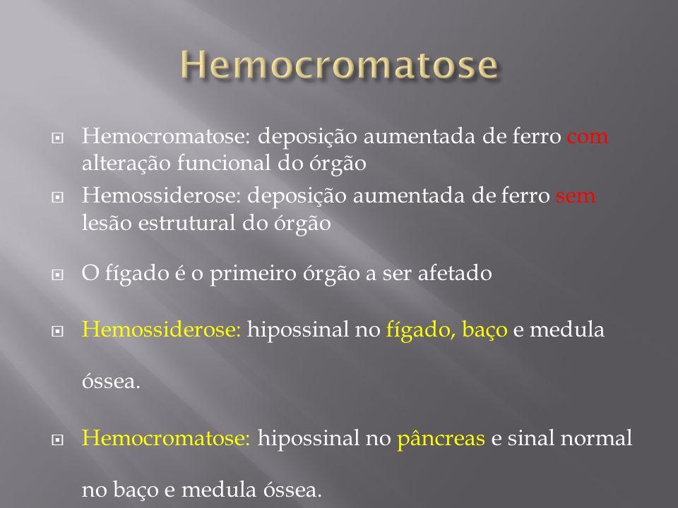Hemocromatose: deposição aumentada de ferro com alteração funcional do órgão Hemossiderose: deposição aumentada de ferro sem lesão estrutural do órgão
