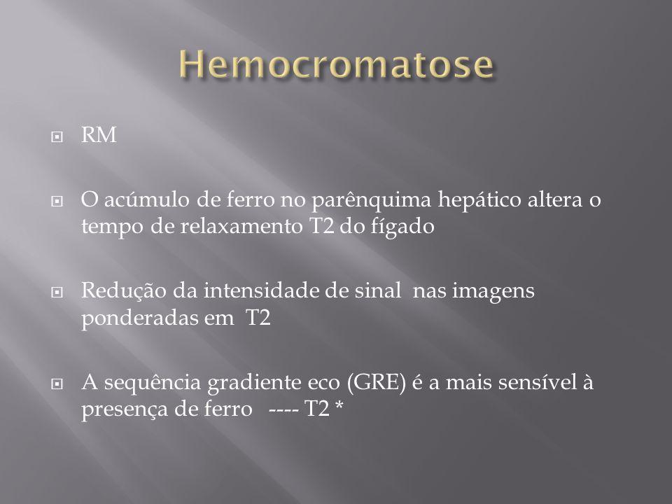 RM O acúmulo de ferro no parênquima hepático altera o tempo de relaxamento T2 do fígado Redução da intensidade de sinal nas imagens ponderadas em T2 A
