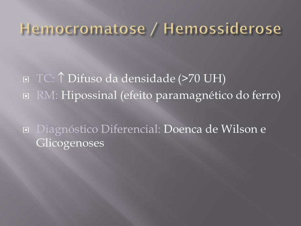 TC: Difuso da densidade (>70 UH) RM: Hipossinal (efeito paramagnético do ferro) Diagnóstico Diferencial: Doenca de Wilson e Glicogenoses