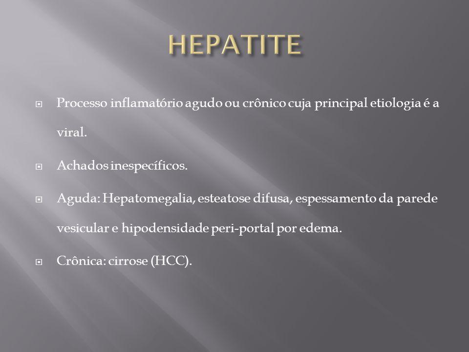 Processo inflamatório agudo ou crônico cuja principal etiologia é a viral. Achados inespecíficos. Aguda: Hepatomegalia, esteatose difusa, espessamento