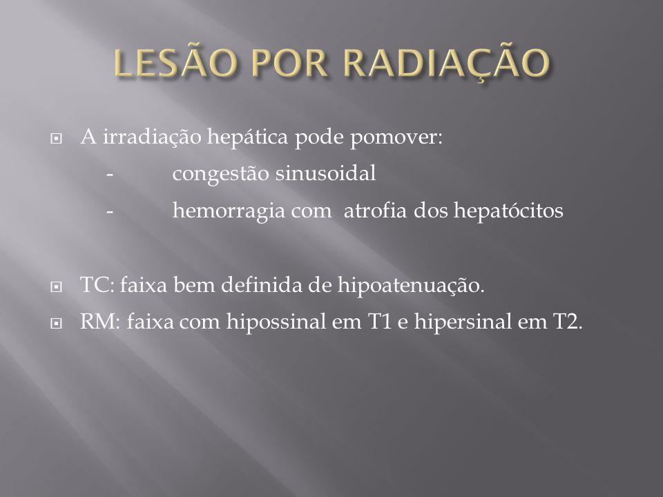 A irradiação hepática pode pomover: -congestão sinusoidal -hemorragia com atrofia dos hepatócitos TC: faixa bem definida de hipoatenuação. RM: faixa c