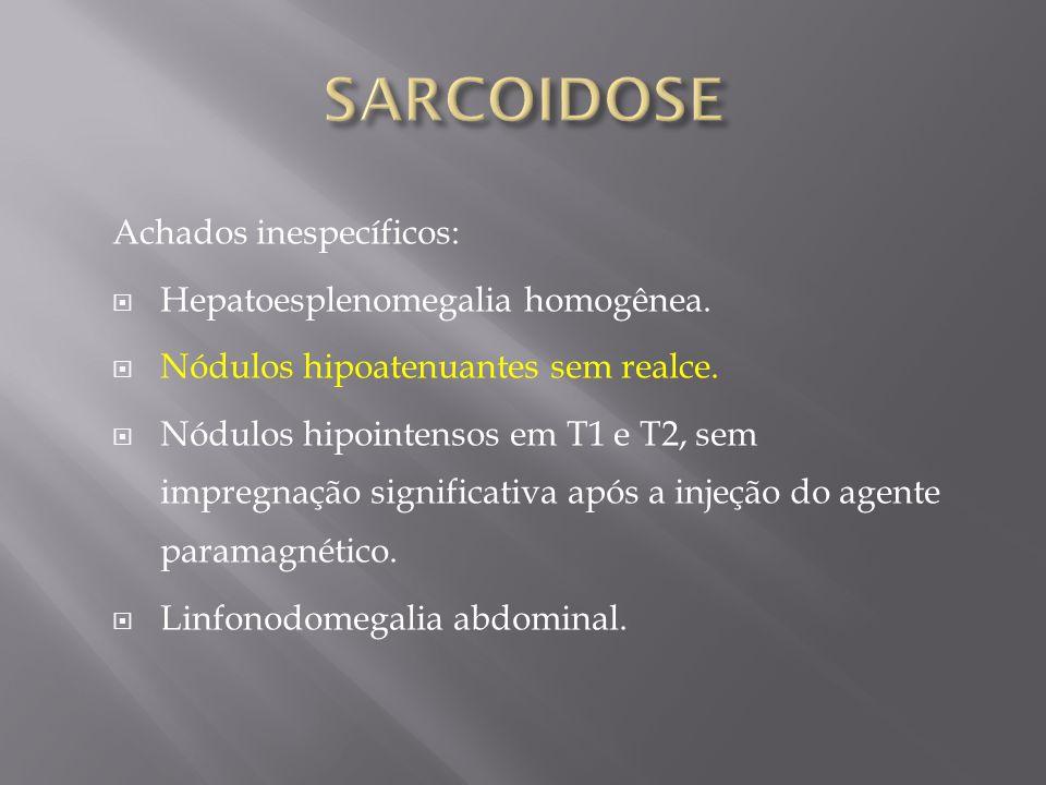 Achados inespecíficos: Hepatoesplenomegalia homogênea. Nódulos hipoatenuantes sem realce. Nódulos hipointensos em T1 e T2, sem impregnação significati