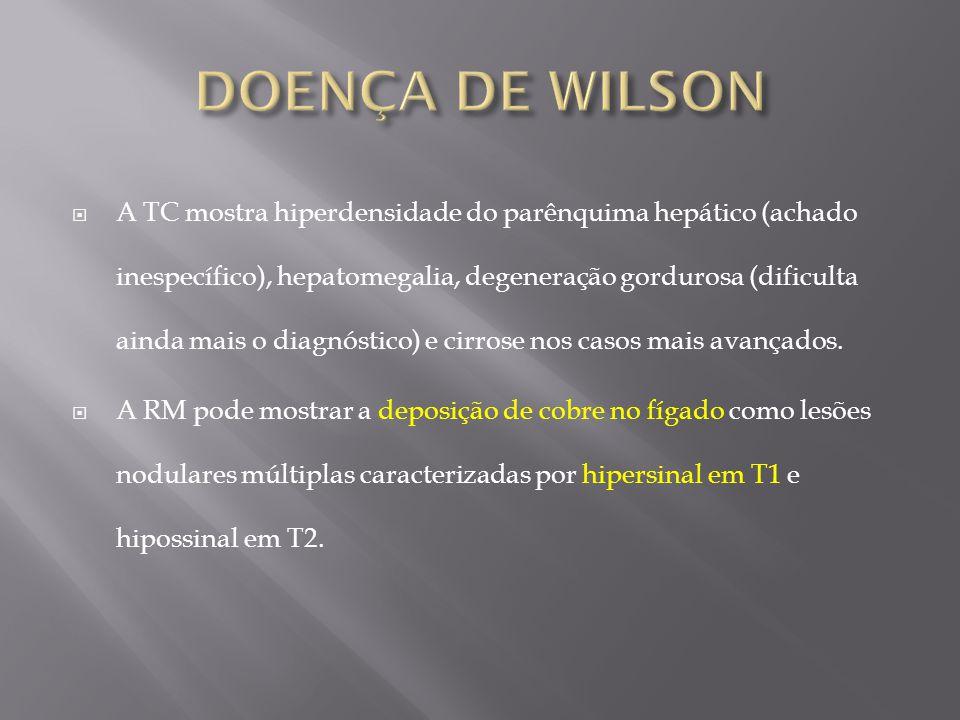 A TC mostra hiperdensidade do parênquima hepático (achado inespecífico), hepatomegalia, degeneração gordurosa (dificulta ainda mais o diagnóstico) e c