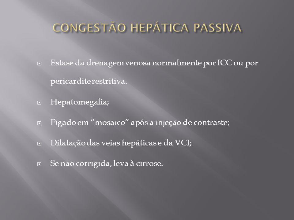 Estase da drenagem venosa normalmente por ICC ou por pericardite restritiva. Hepatomegalia; Fígado em mosaico após a injeção de contraste; Dilatação d