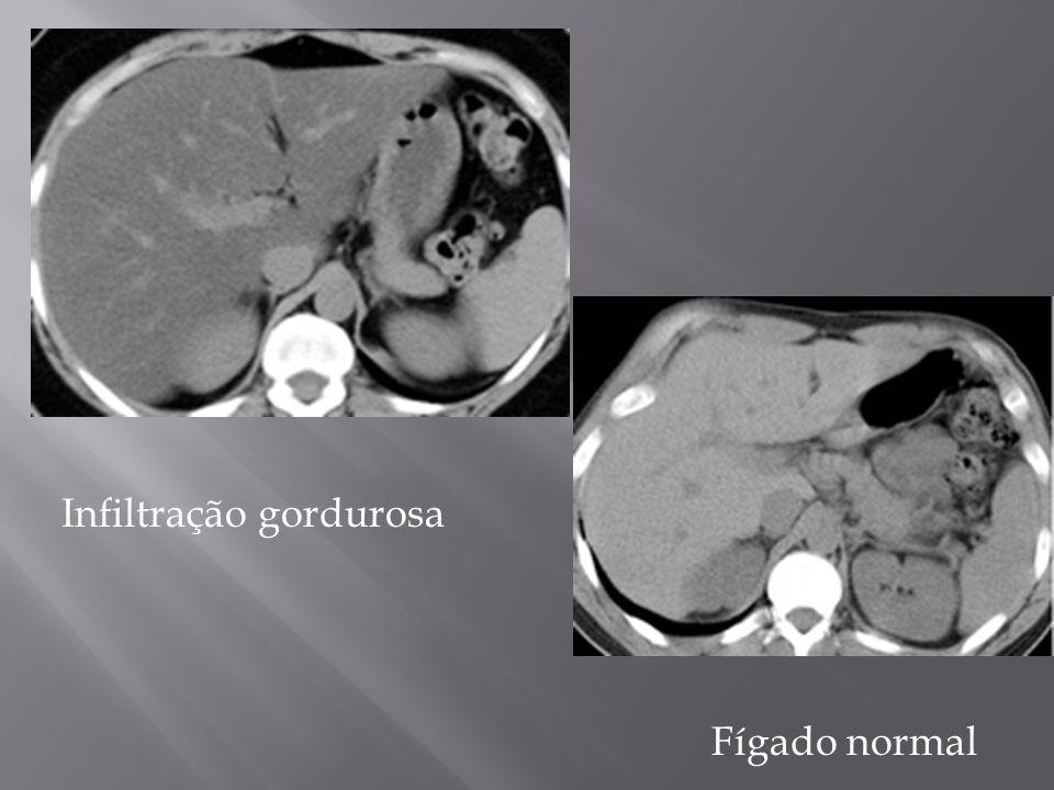 Imagens ponderadas em T2*, com importante hipossinal do fígado e baço