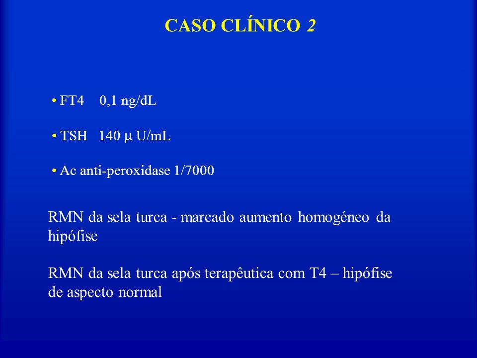 CASO CLÍNICO 2 RMN da sela turca - marcado aumento homogéneo da hipófise FT4 0,1 ng/dL TSH 140 U/mL Ac anti-peroxidase 1/7000 RMN da sela turca após t