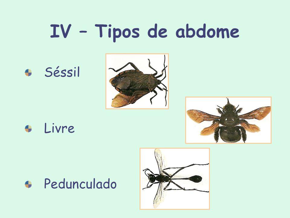 IV – Tipos de abdome Séssil Livre Pedunculado