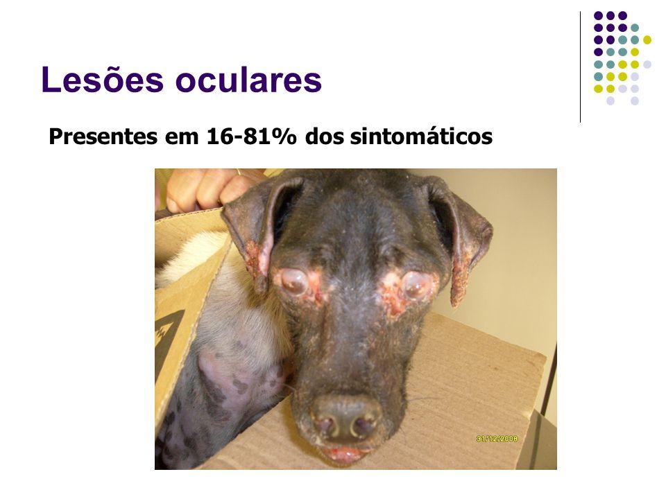 Lesões oculares Presentes em 16-81% dos sintomáticos