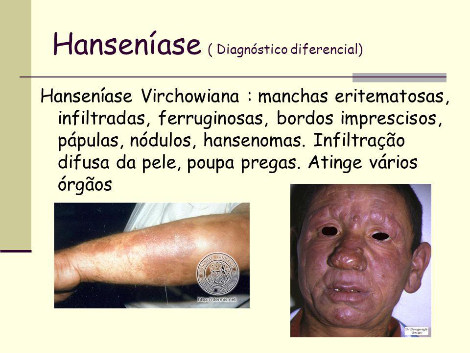 Hanseníase ( Diagnóstico diferencial) Hanseníase Virchowiana : manchas eritematosas, infiltradas, ferruginosas, bordos imprescisos, pápulas, nódulos,