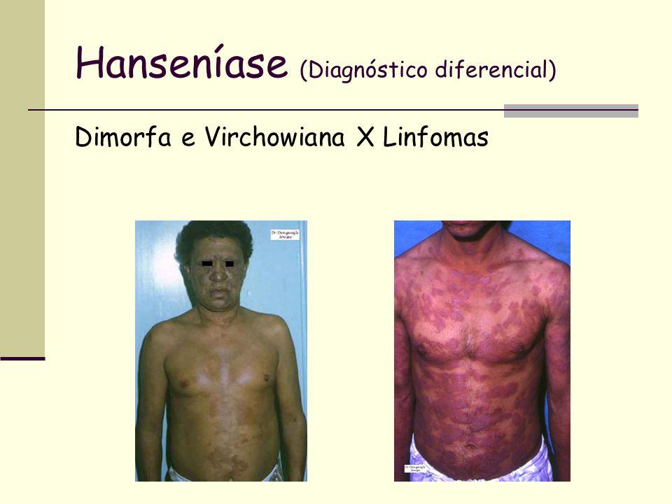 Hanseníase (Diagnóstico diferencial) Dimorfa e Virchowiana X Linfomas