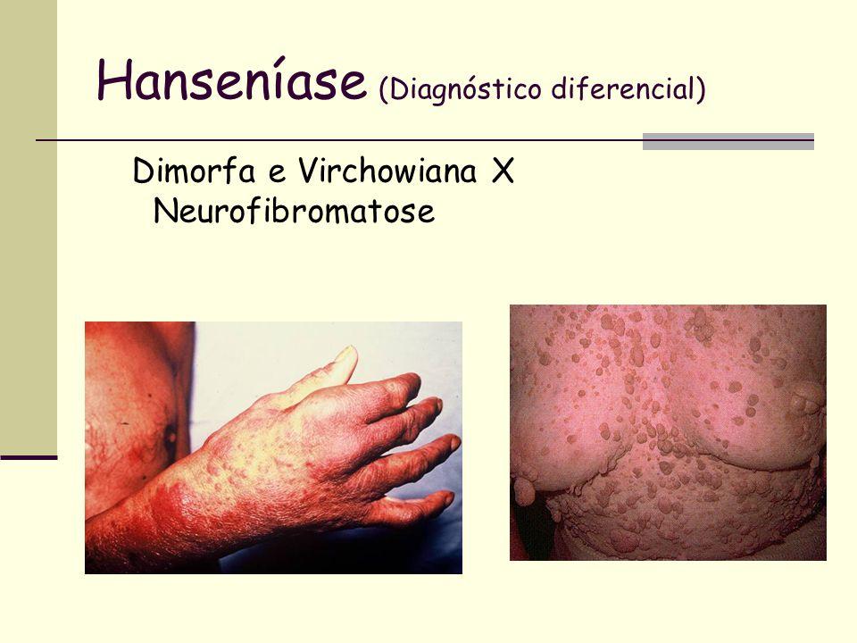 Hanseníase (Diagnóstico diferencial) Dimorfa e Virchowiana X Neurofibromatose