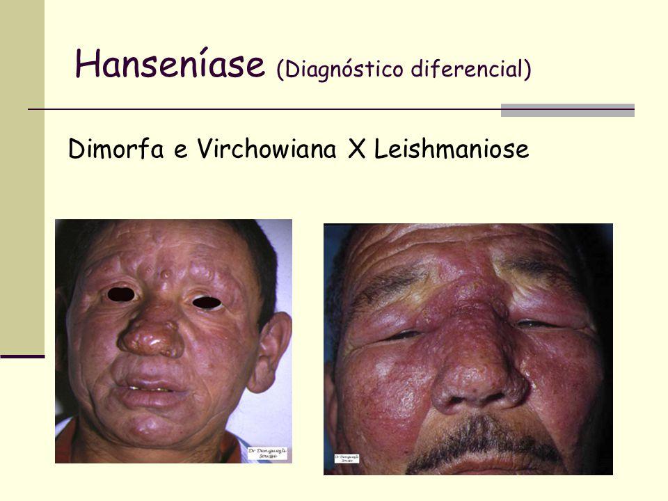 Hanseníase (Diagnóstico diferencial) Dimorfa e Virchowiana X Leishmaniose