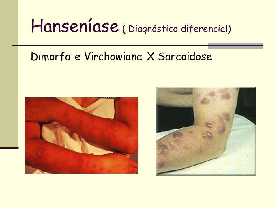 Hanseníase ( Diagnóstico diferencial) Dimorfa e Virchowiana X Sarcoidose