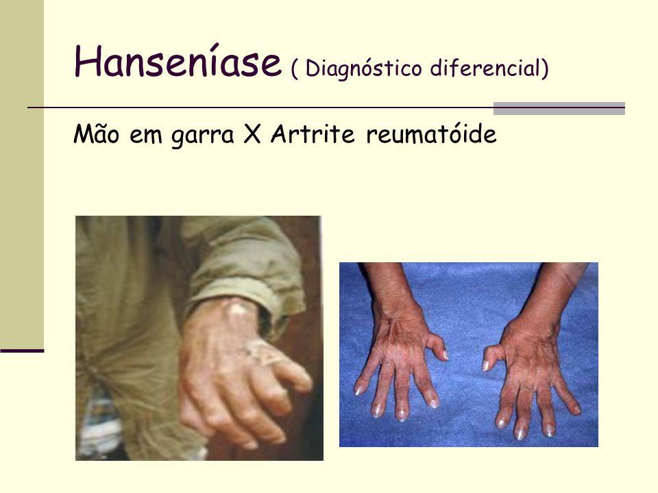 Hanseníase ( Diagnóstico diferencial) Mão em garra X Artrite reumatóide