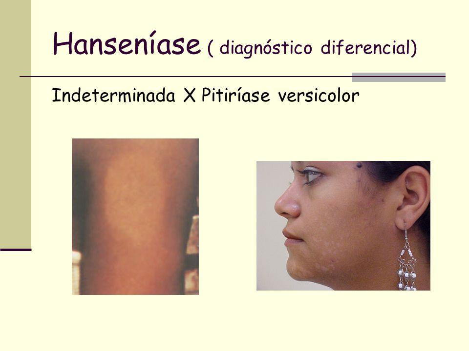 Hanseníase ( diagnóstico diferencial) Indeterminada X Pitiríase versicolor