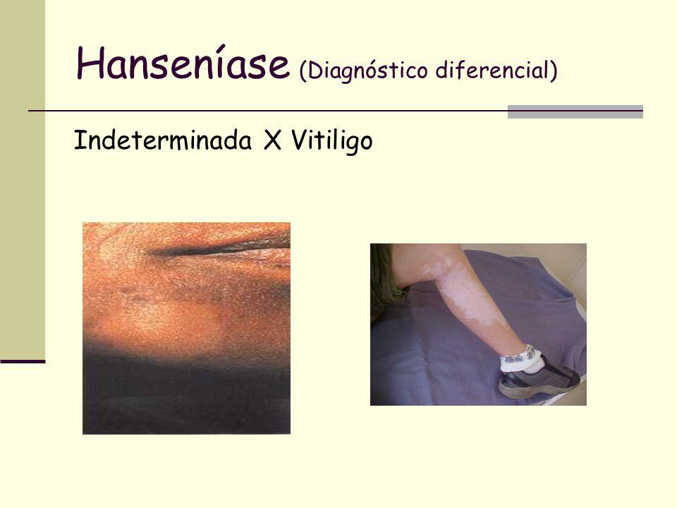 Hanseníase (Diagnóstico diferencial) Indeterminada X Vitiligo