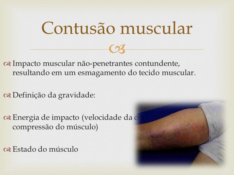 Impacto muscular não-penetrantes contundente, resultando em um esmagamento do tecido muscular.