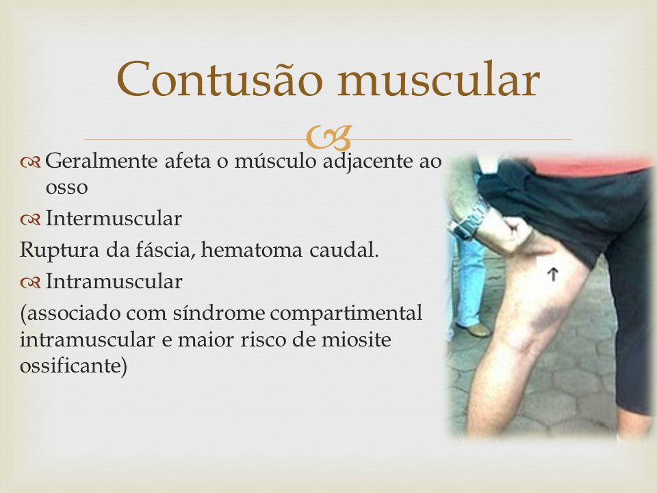 Geralmente afeta o músculo adjacente ao osso Intermuscular Ruptura da fáscia, hematoma caudal.