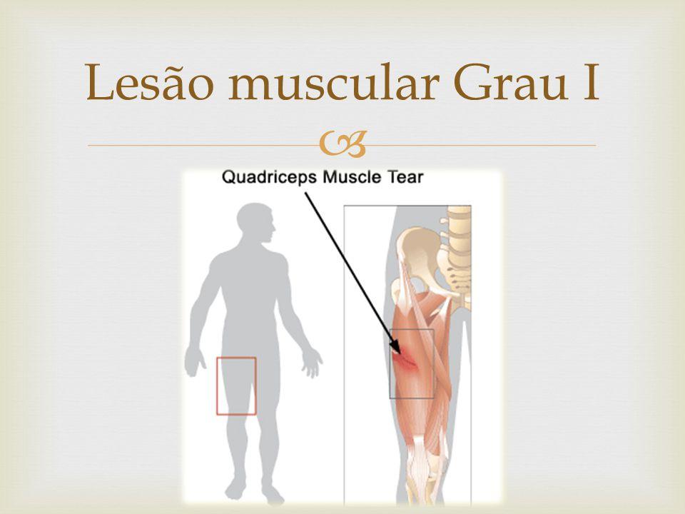 Lesão muscular Grau I