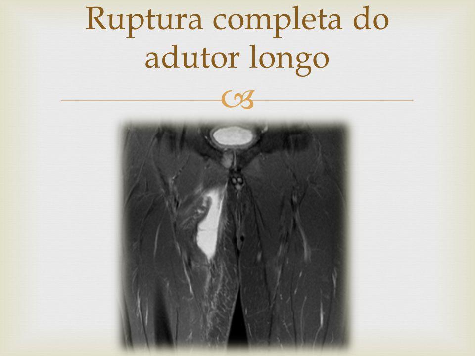 Ruptura completa do adutor longo