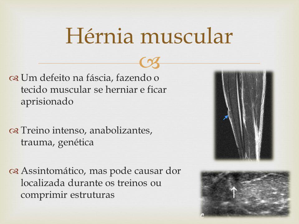 Um defeito na fáscia, fazendo o tecido muscular se herniar e ficar aprisionado Treino intenso, anabolizantes, trauma, genética Assintomático, mas pode causar dor localizada durante os treinos ou comprimir estruturas Hérnia muscular