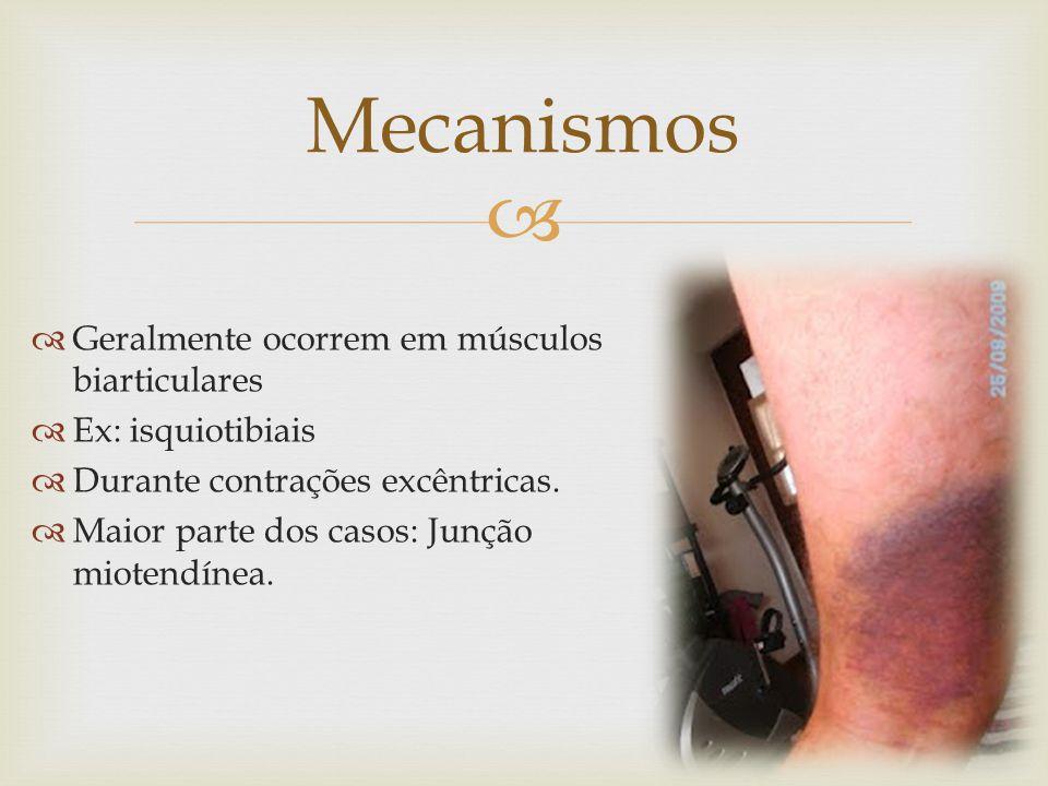 Geralmente ocorrem em músculos biarticulares Ex: isquiotibiais Durante contrações excêntricas.