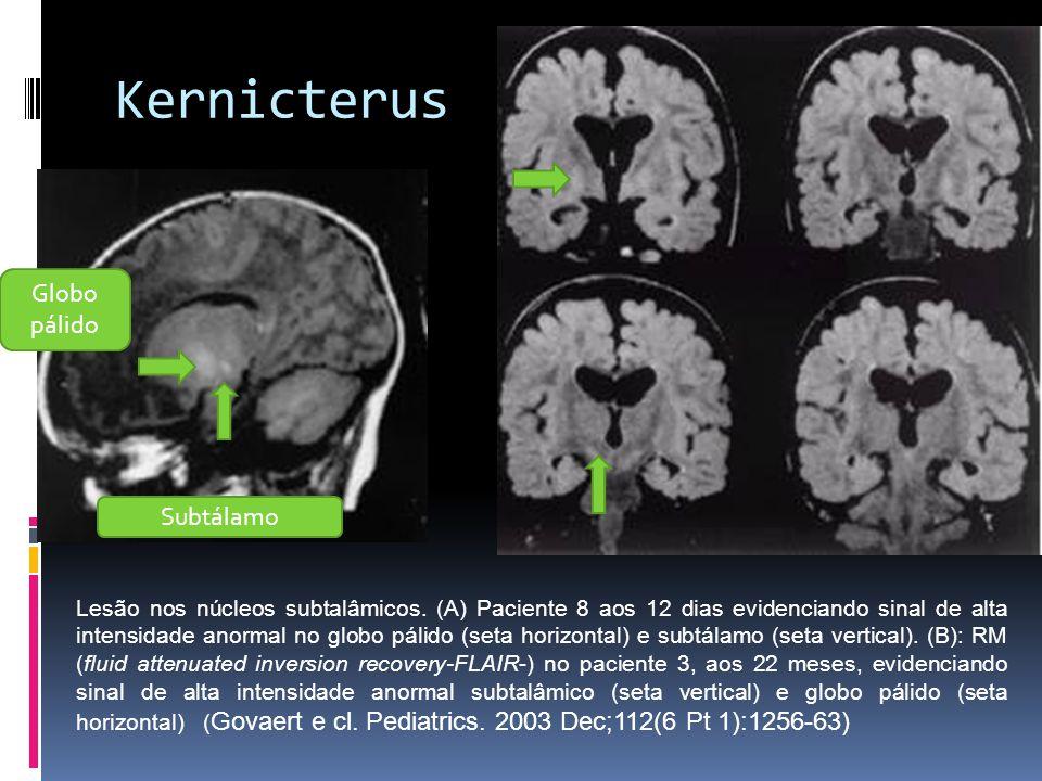 Kernicterus Lesão nos núcleos subtalâmicos. (A) Paciente 8 aos 12 dias evidenciando sinal de alta intensidade anormal no globo pálido (seta horizontal