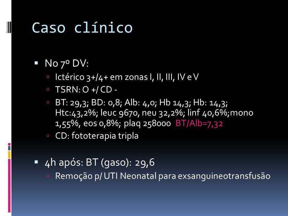 Caso clínico No 7º DV: Ictérico 3+/4+ em zonas I, II, III, IV e V TSRN: O +/ CD - BT: 29,3; BD: 0,8; Alb: 4,0; Hb 14,3; Hb: 14,3; Htc:43,2%; leuc 9670