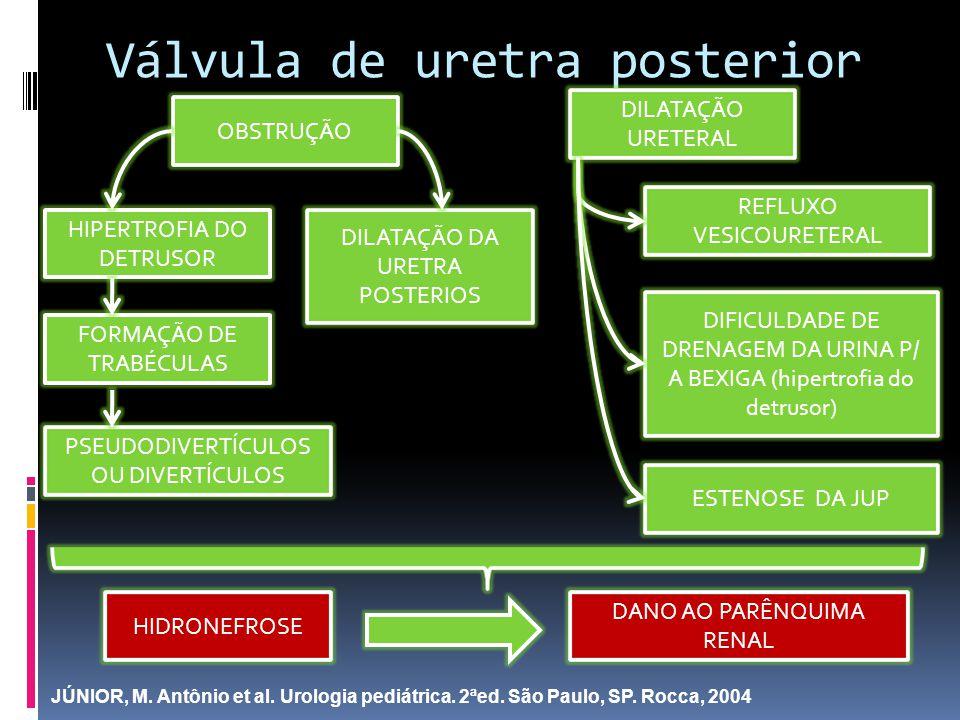 Válvula de uretra posterior OBSTRUÇÃO DILATAÇÃO DA URETRA POSTERIOS HIPERTROFIA DO DETRUSOR FORMAÇÃO DE TRABÉCULAS PSEUDODIVERTÍCULOS OU DIVERTÍCULOS