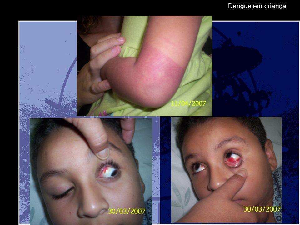 Dengue em criança