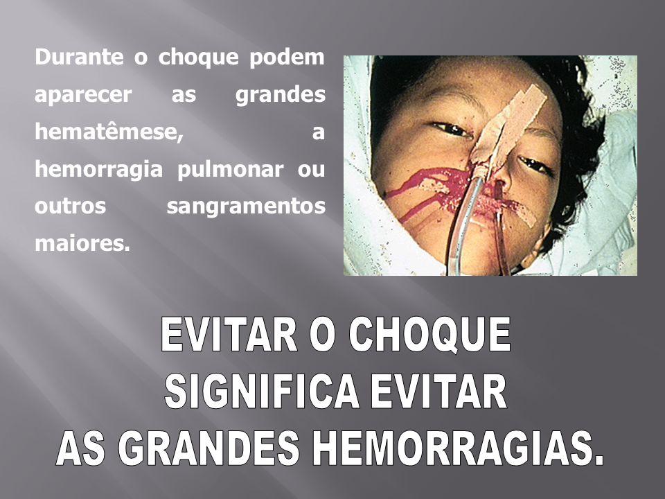 Durante o choque podem aparecer as grandes hematêmese, a hemorragia pulmonar ou outros sangramentos maiores.