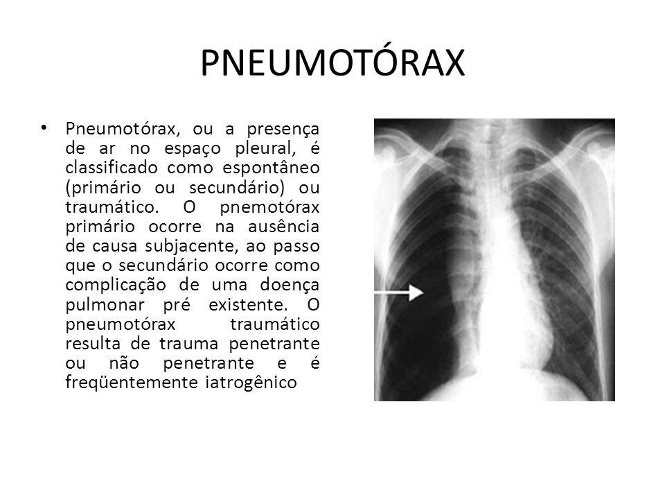 PNEUMOTÓRAX Pneumotórax, ou a presença de ar no espaço pleural, é classificado como espontâneo (primário ou secundário) ou traumático. O pnemotórax pr