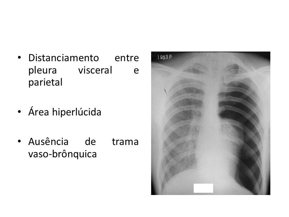 Distanciamento entre pleura visceral e parietal Área hiperlúcida Ausência de trama vaso-brônquica