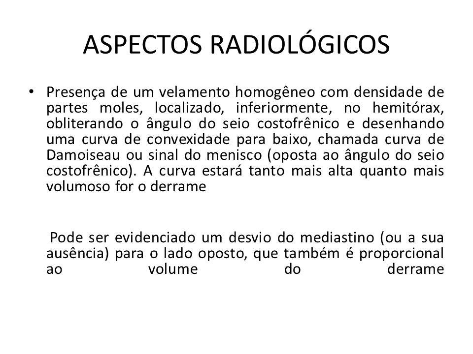 ASPECTOS RADIOLÓGICOS Presença de um velamento homogêneo com densidade de partes moles, localizado, inferiormente, no hemitórax, obliterando o ângulo