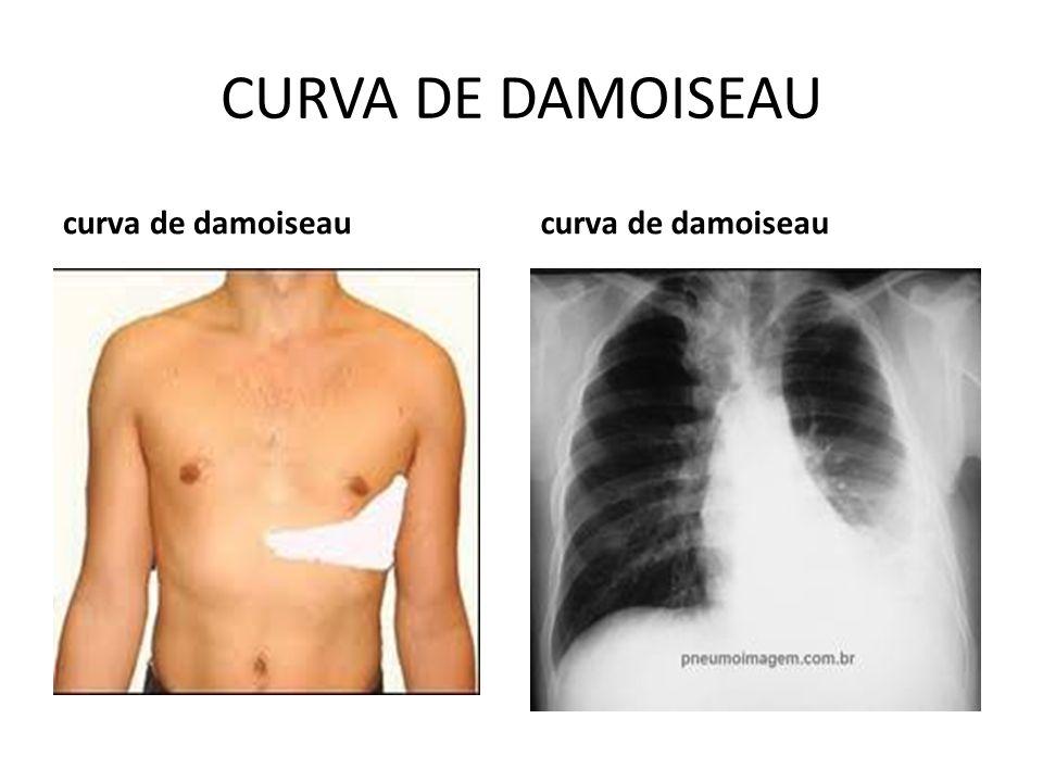 CURVA DE DAMOISEAU curva de damoiseau