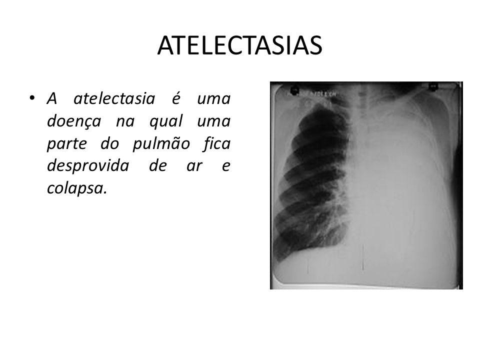 TIPOS 1 - Atelectasias de reabsorção, decorrentes da obstrução brônquica por plugs de secreção ou por corpo estranho na luz do brônquio; alterações da parede do brônquio (ex: edema da mucosa, inflamação, tumores ou espasmos da musculatura lisa); compressão extrínseca por tumores ou gânglios, ou por vasos sangüíneos dilatados ou anômalos.