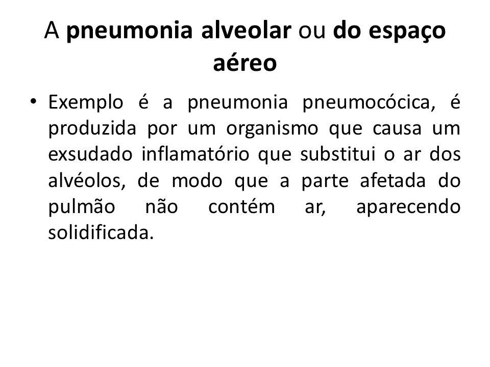 A pneumonia alveolar ou do espaço aéreo Exemplo é a pneumonia pneumocócica, é produzida por um organismo que causa um exsudado inflamatório que substi