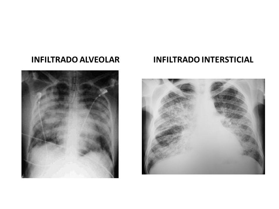 INFILTRADO ALVEOLARINFILTRADO INTERSTICIAL