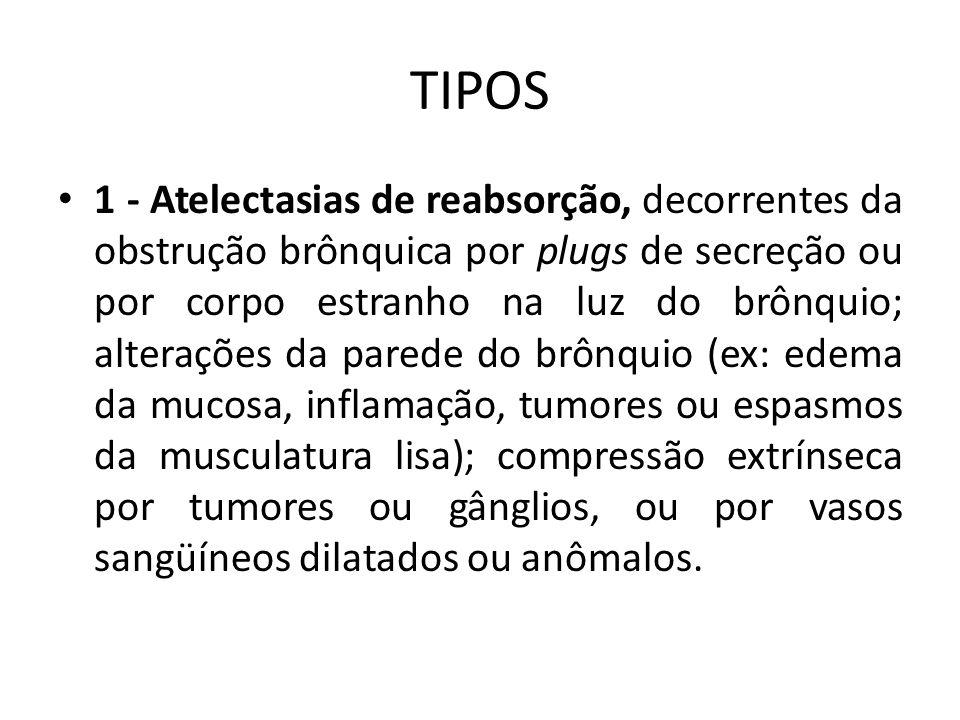 TIPOS 1 - Atelectasias de reabsorção, decorrentes da obstrução brônquica por plugs de secreção ou por corpo estranho na luz do brônquio; alterações da